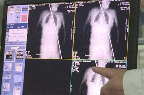 'Thought I was going to die': Woman survives being impaled